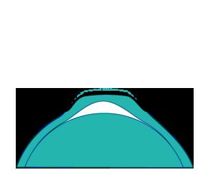 Óptica Belén Orto K 2